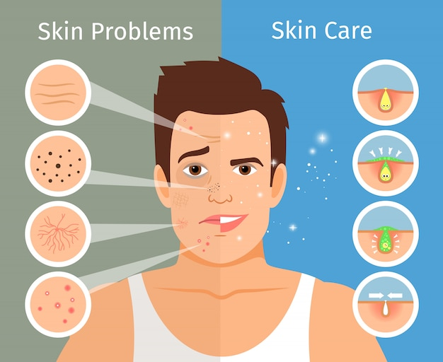 男性の顔の皮膚治療のベクトル図です。美しく、問題を抱えた顔の皮膚を持つ若い男の肖像画 Premiumベクター