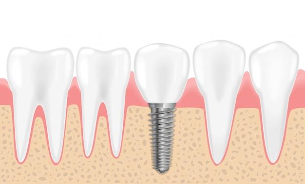 健康的なリアルな歯と歯科用インプラント Premiumベクター