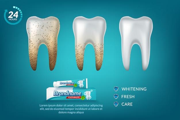 歯磨き粉の広告ポスターを白くします。 Premiumベクター