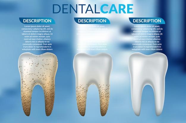 美白処理前後の清潔な歯と汚れた歯の比較 Premiumベクター