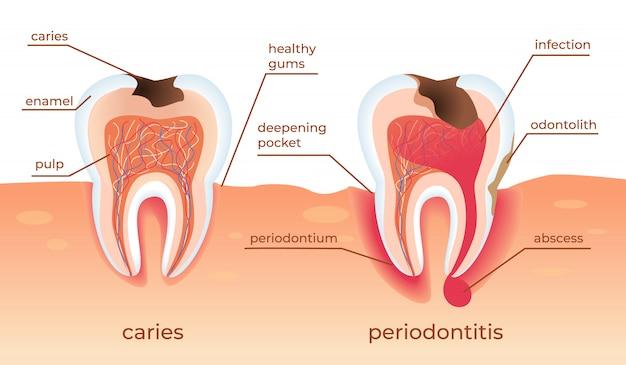 不健康な歯が歯茎に生で立っています。虫歯。 Premiumベクター