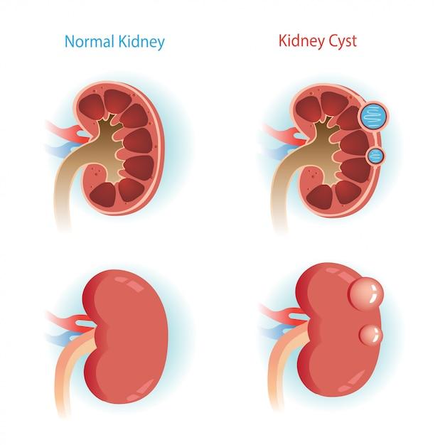 腎臓嚢胞ステップ図。 Premiumベクター