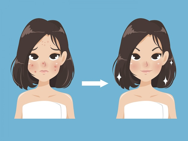 Acne and beauty in a young women. Premium Vector