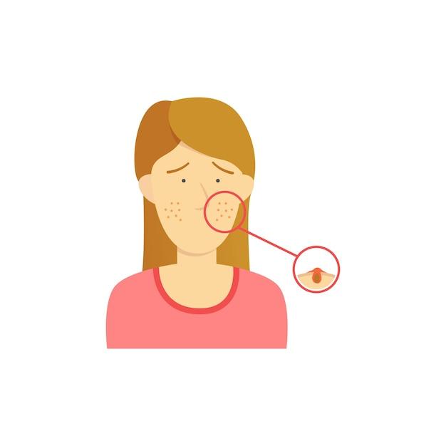 Acne diagram vector premium download acne diagram premium vector ccuart Gallery