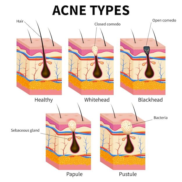 にきびのタイプ。にきび皮膚病の解剖学医療図 Premiumベクター