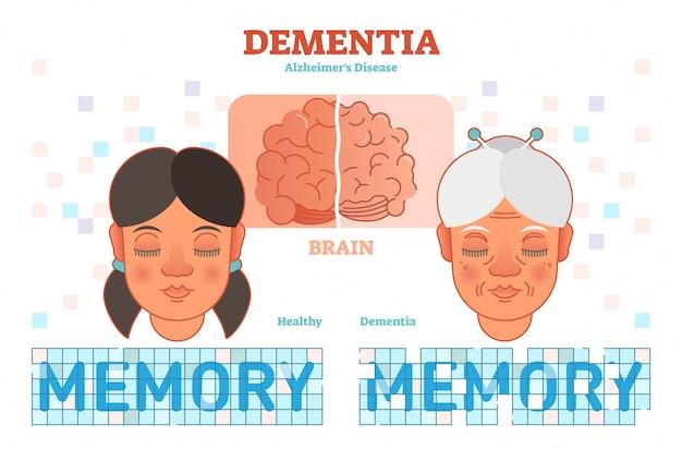 Alzheimer's disease concept vector illustration Premium Vector