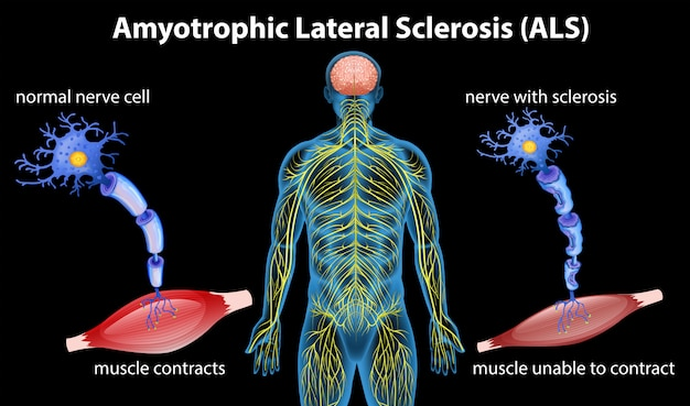 Anatomy of amyotrophic lateral sclerosis Premium Vector