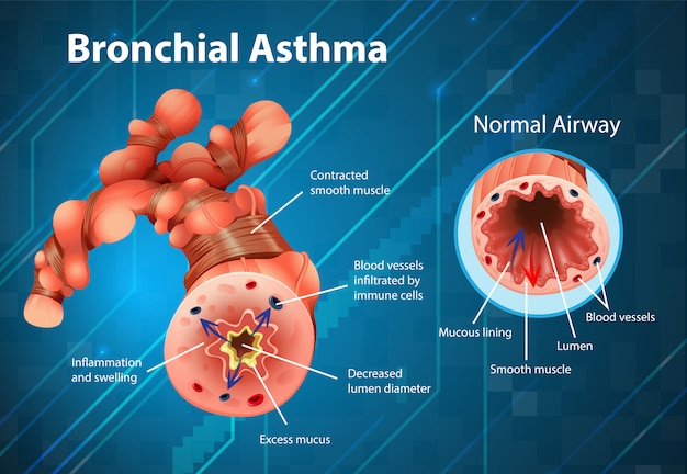 Asthma inflamed bronchial tube Free Vector