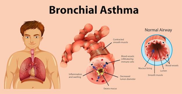 Tubo bronchiale infiammato dall'asma Vettore gratuito
