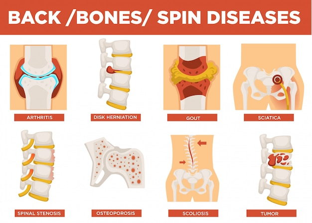 Вектор объяснения заболеваний позвоночника, костей и человека Premium векторы