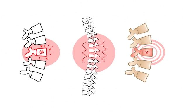 Боль в пояснице иллюстрация с красным кругом. | Премиум векторы
