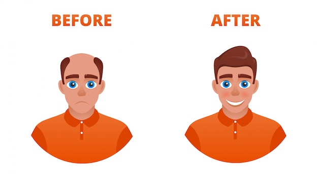 Bald man after hair transplant. the result of the use of minoxidil. wearing a wig Premium Vector