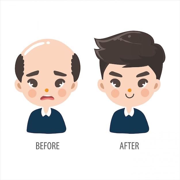 Bald man without confidence and long hair men look more handsome. Premium Vector