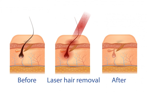 Before and after hair removal procedure. Premium Vector