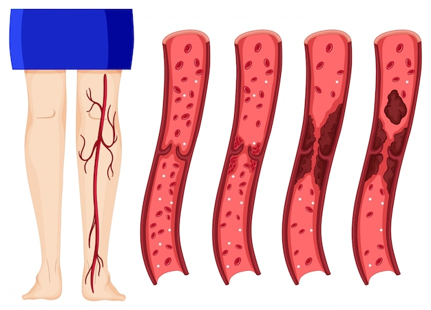 Blood clot in human legs Free Vector