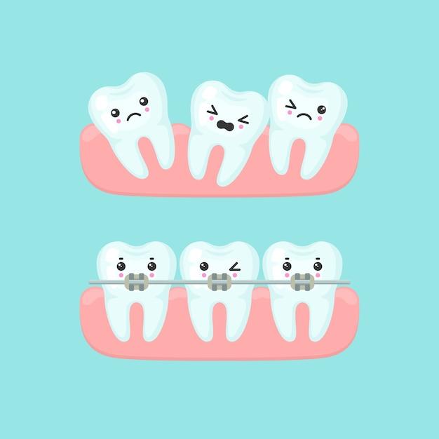 中かっこアライメント口腔病学の概念。かわいい漫画の歯の孤立したイラスト Premiumベクター