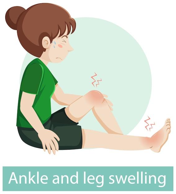 Personaggio dei cartoni animati con sintomi di gonfiore alla caviglia e alle gambe Vettore gratuito