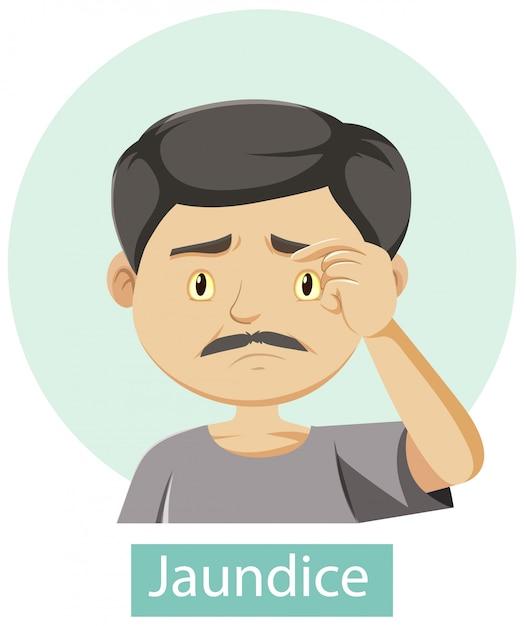 Personaggio dei cartoni animati con sintomi di ittero Vettore gratuito