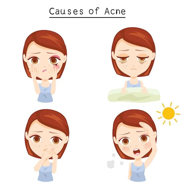 Causes of acne Premium Vector