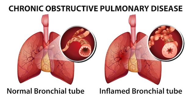 Broncopneumopatia cronica ostruttiva Vettore gratuito