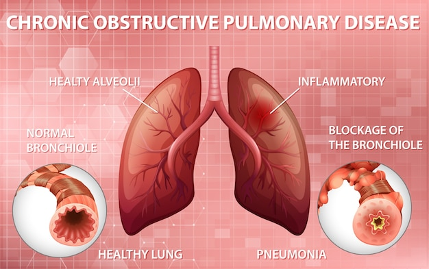 慢性閉塞性肺疾患 無料ベクター