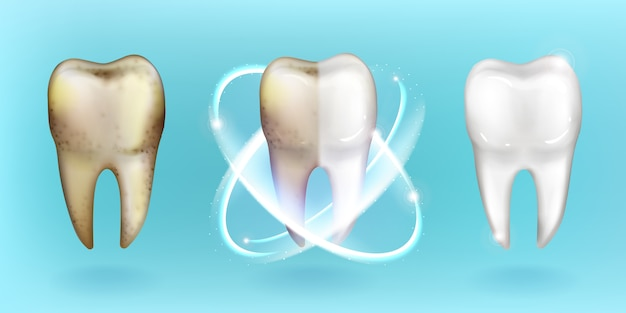 Clean and dirty tooth, whitening or clearing teeth Free Vector