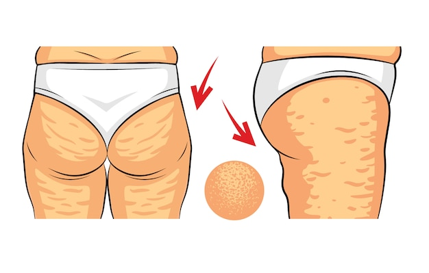 Color vector illustration of cellulite problem. female hips rear view and side view. fat deposits on the female buttocks. hip with orange peel macro view Premium Vector
