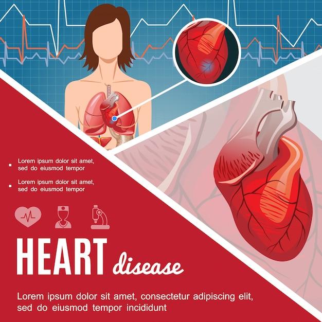 漫画のスタイルで心臓の解剖学と女性の体でカラフルな医療ポスター 無料ベクター