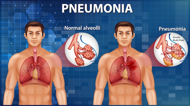 Comparison of healthy alveoli and pneumonia Free Vector