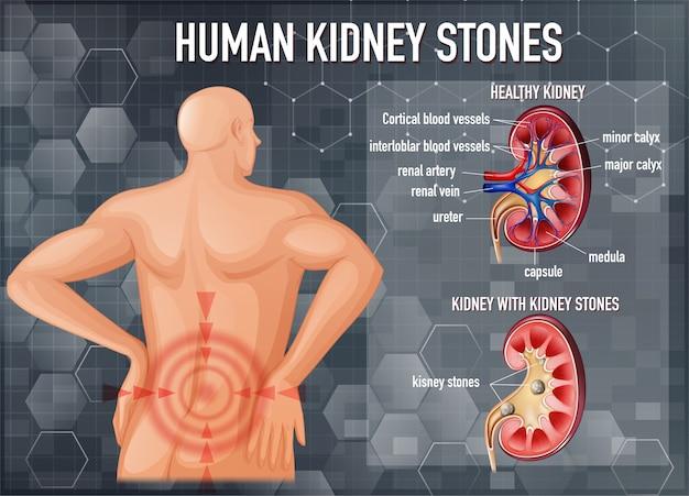 Confronto di reni sani e reni con calcoli Vettore gratuito