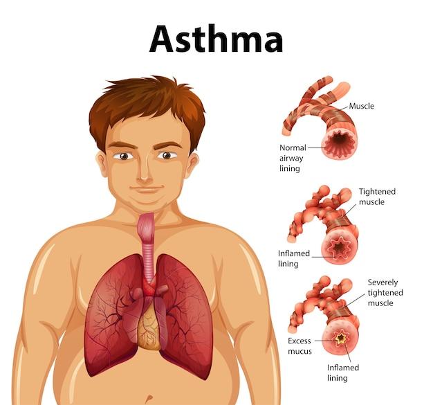 Confronto tra polmone sano e polmone asmatico Vettore gratuito