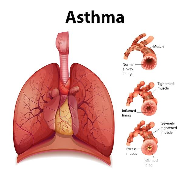 健康な肺と喘息の肺の比較 無料ベクター