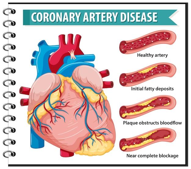 Ишемическая болезнь сердца для инфографики санитарного просвещения Бесплатные векторы