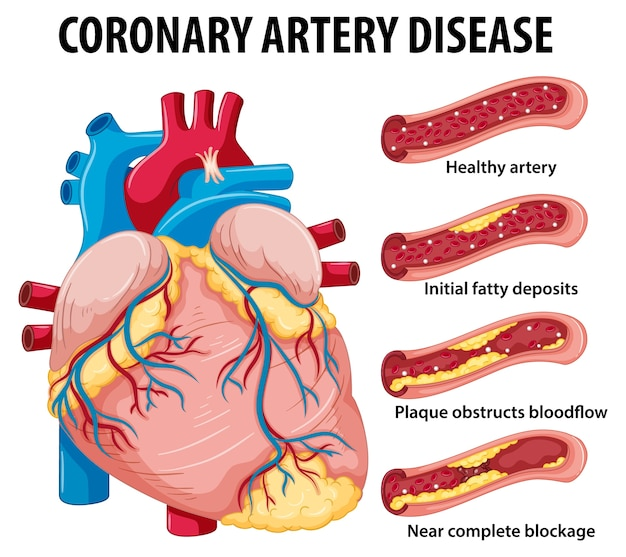 Coronary artery disease for health education infographic Free Vector
