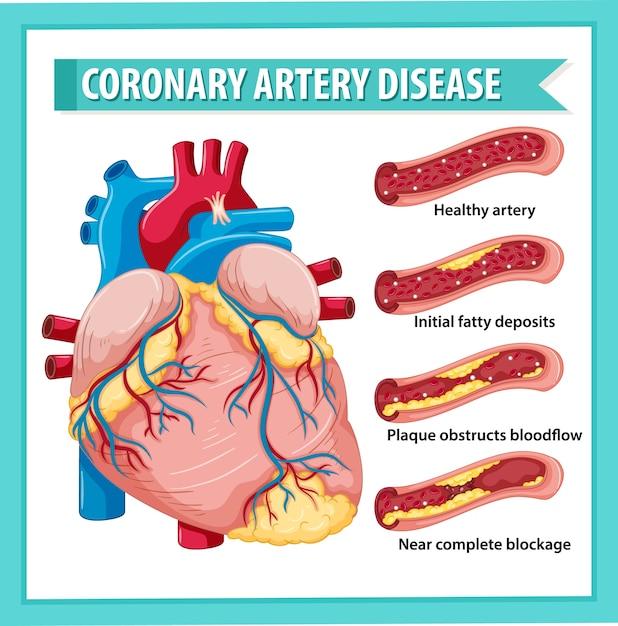 Malattia coronarica per l'educazione sanitaria infografica Vettore gratuito