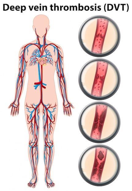 Deep vein thrombosis anatomy Vector | Free Download
