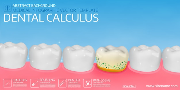 Dental calculus. Premium Vector