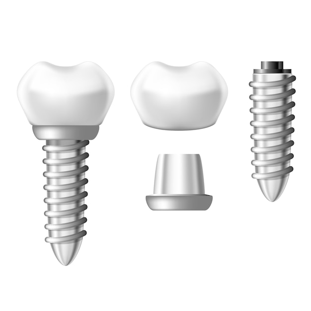 Dental implant component parts - tooth denture components Premium Vector