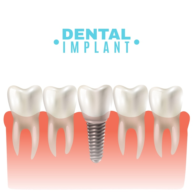 Dental implant model side view poster Free Vector