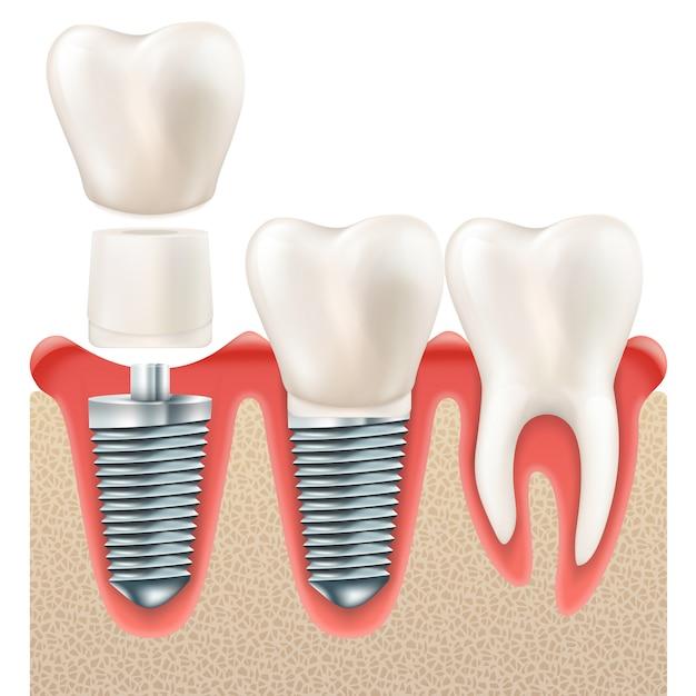 歯科インプラントセット。 Premiumベクター