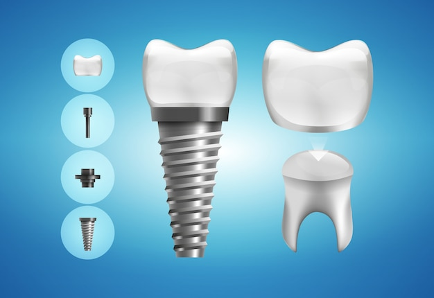 Dental implant structure and crown restoration in realistic style.  . Premium Vector
