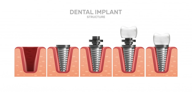 Dental implant structure and full placement steps in realistic style. Premium Vector