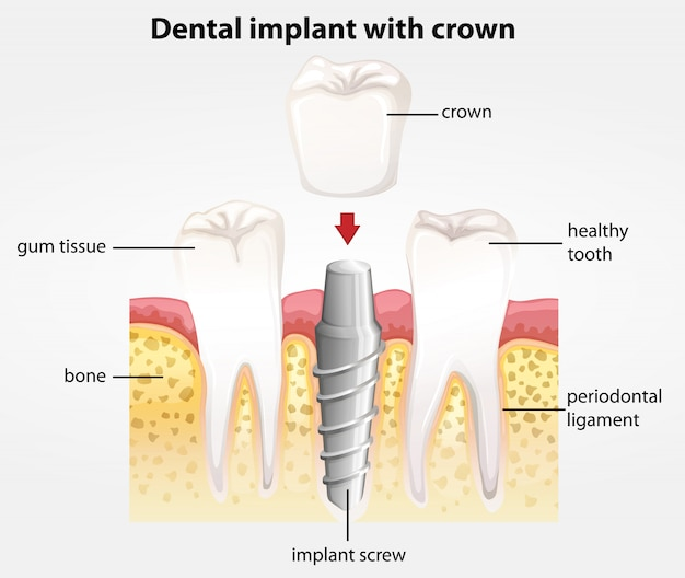 Dental implant with crown Premium Vector