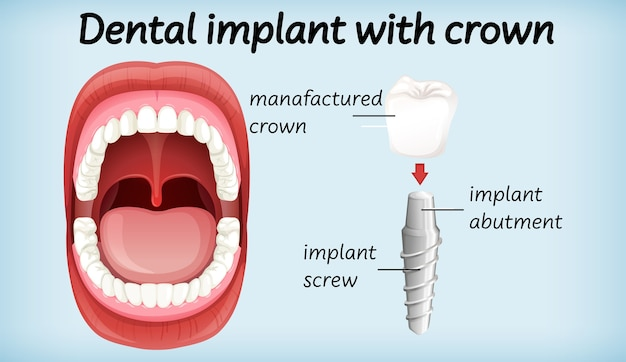 Dental implant with crown Free Vector