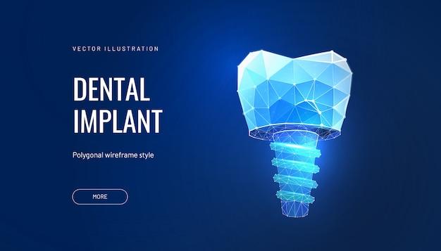 Зубной имплант с цифровыми технологиями в стоматологии Premium векторы