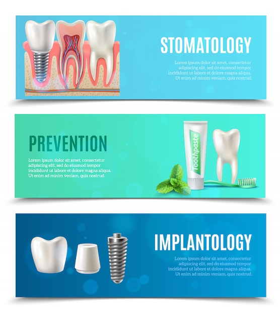 Dental implants 3 horizontal banners set Free Vector