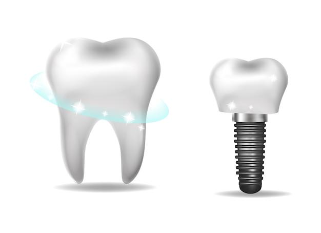 歯科インプラント、補綴の現実的なスタイル。歯科、健康な歯のコンセプト。図 Premiumベクター