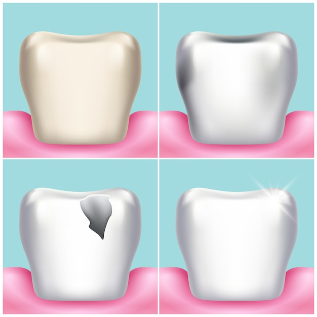 Dental problems, caries, plaque and gum disease, healthy tooth illustration. stomatology and Premium Vector