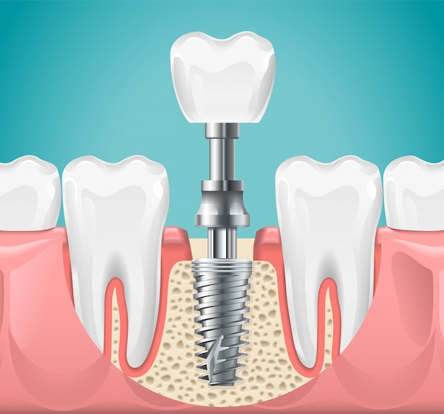 Dental surgery. tooth implant cut illustration. healthy teeth and dental implant, stomatology poster Premium Vector