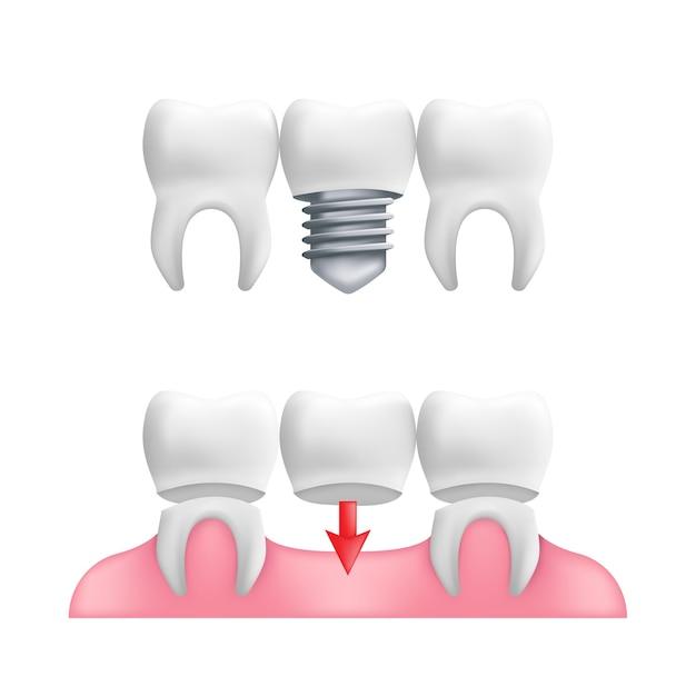 義歯の概念-固定された歯科用ブリッジワークとインプラントを備えた健康な歯。 Premiumベクター
